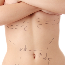 Torso of model with incision marks below breasts and on abdomen
