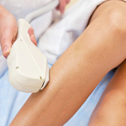 Permanent Hair Removal Montreal