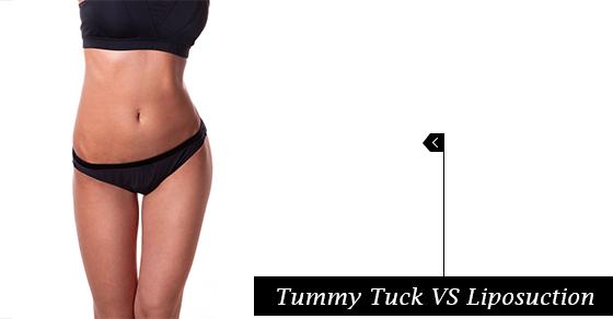 Tummy Tuck VS Liposuction