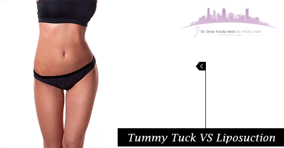Tummy Tuck VS Liposuction