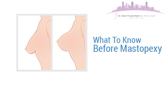 What To Know Before Mastopexy