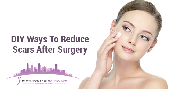 Reduce Scars After Surgery