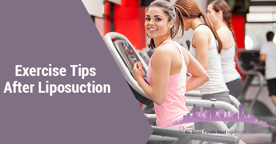 Exercise After Liposuction