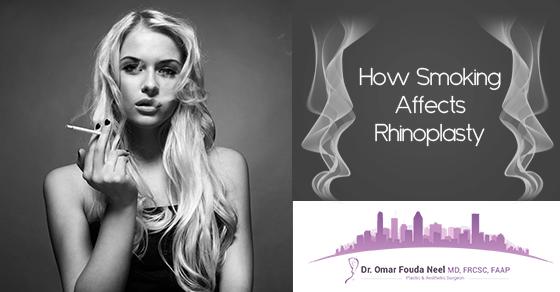Rhinoplasty Doctor in Montreal Warns Against Smoking Before