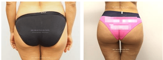 Brazilian butt lift before-and-after