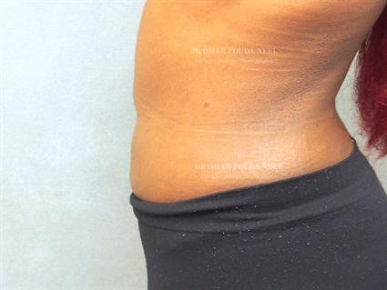 Female liposuction patient - after