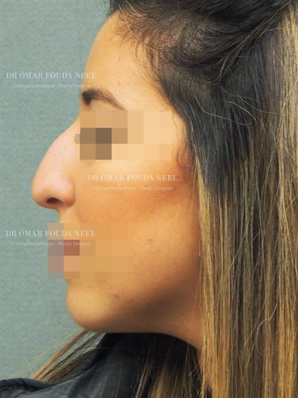 Patient's nose before rhinoplasty